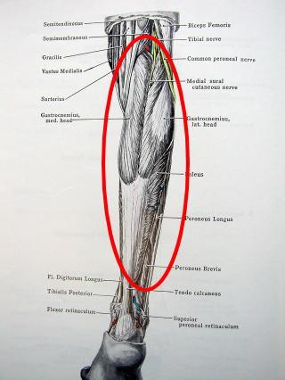 このページの先頭へ copyright 2012 千賀整形外科 all... 下腿三頭筋筋断裂